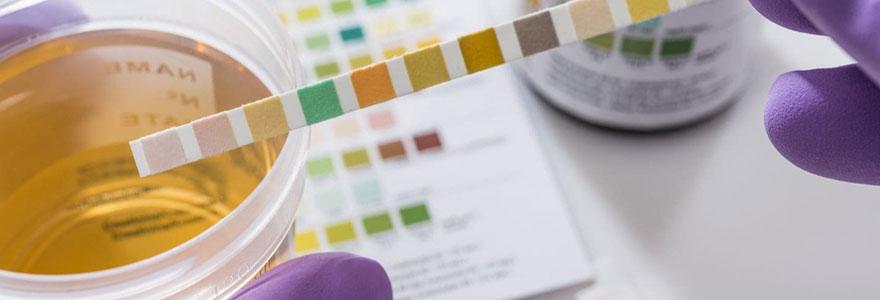 Test de protéinurie femme enceinte